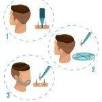 beard-procedure