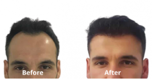 before-after-quick-hair-transplant-in-india