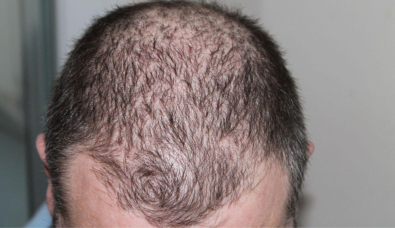 case-study-grade7-baldness